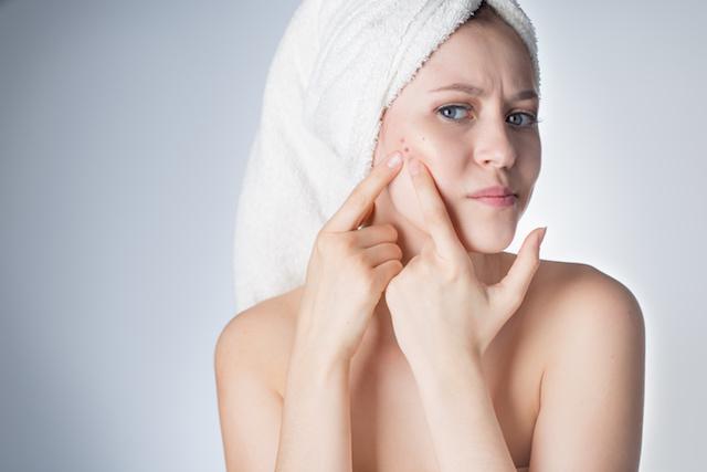 Leidest Du unter Hautproblemen, wie z.B. Akne, Unreinheiten, Neurodermitis etc.?